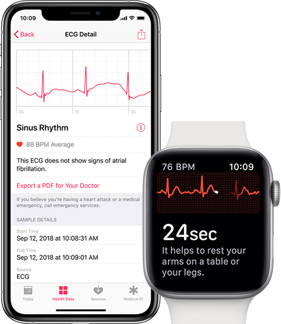 Apple Watchの返品期間、心拍数測定や心電図機能の不具合で45日間まで延長?
