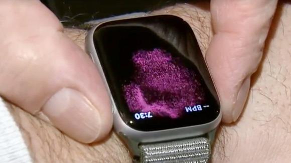 Apple Watch Series 4の心電図機能でまた一人の患者が救われた