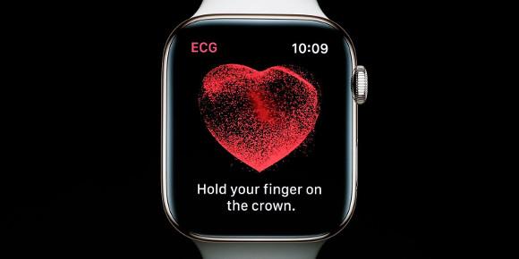AppleがJ&Jと提携、Apple Watchで脳卒中リスクを減らす研究開始